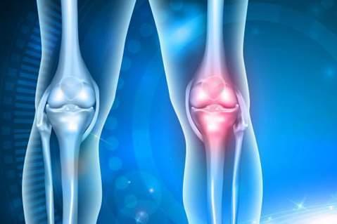 آرتروز عمده علت تعویض مفاصل ، علل و توصیه ها جهت پیشگیری